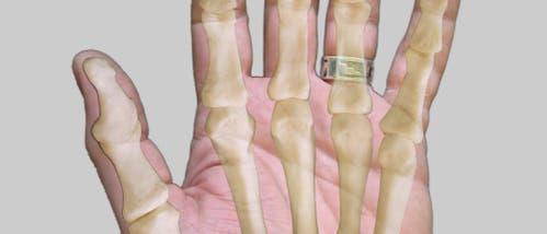 Hand plus Skelett