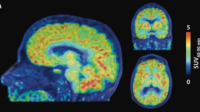 Epigenetische Aktivität im Gehirn