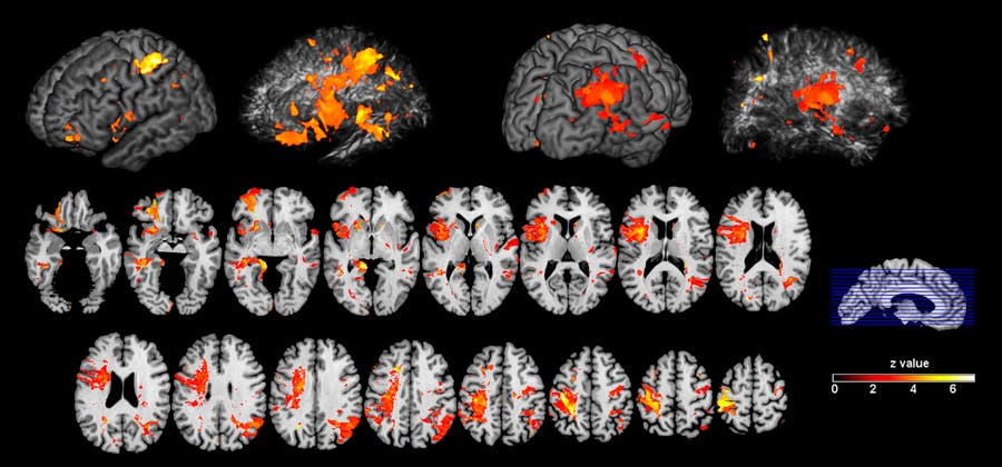 Nervenbahnen beeinflussen Intelligenz