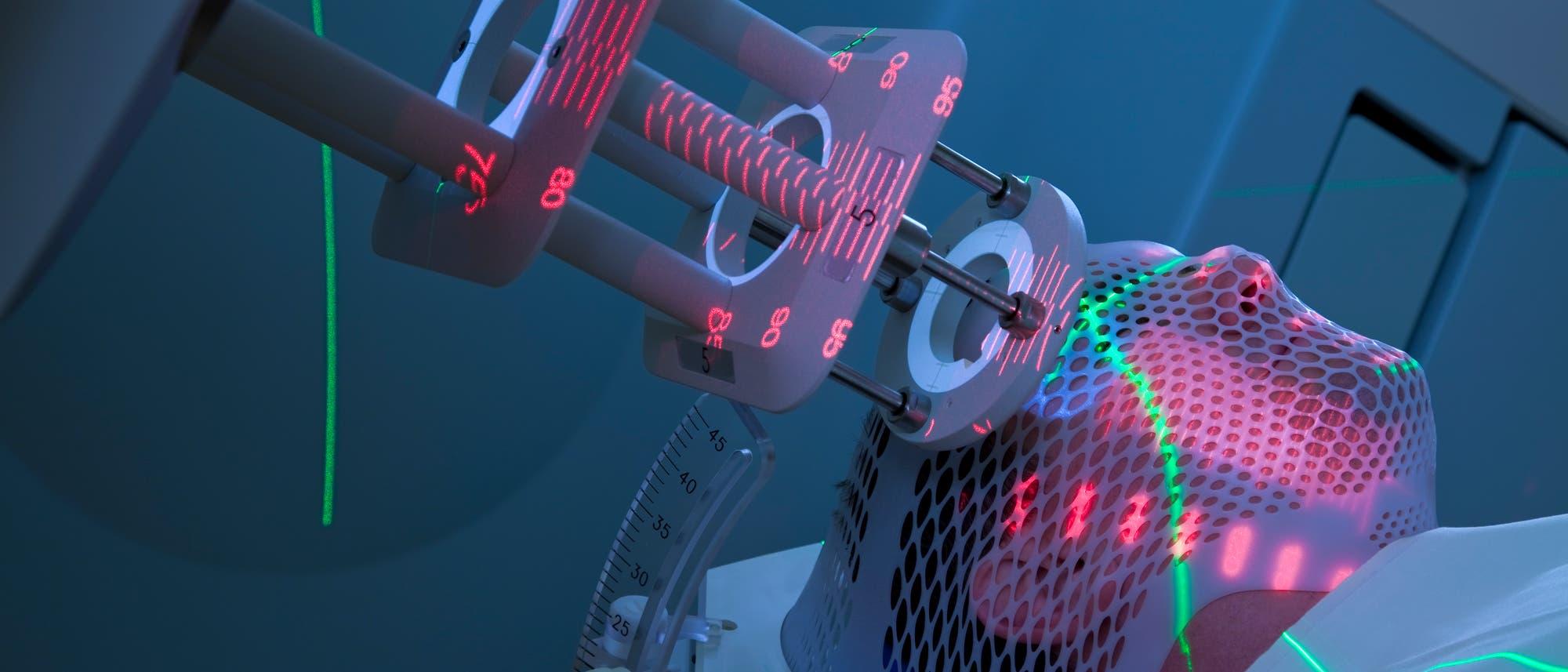 Ein Mann bekommt Strahlentherapie gegen Krebs; auf Kopf und Bestrahlungsgerät sieht man projizierte Positionsmarker in Neonfarben.