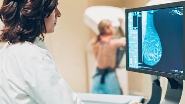 Seit einigen Jahren gibt es in Deutschland ein gesetzliches Früherkennungsprogramm, das Mammografie-Screening für Frauen zwischen 50 und 69 Jahren.