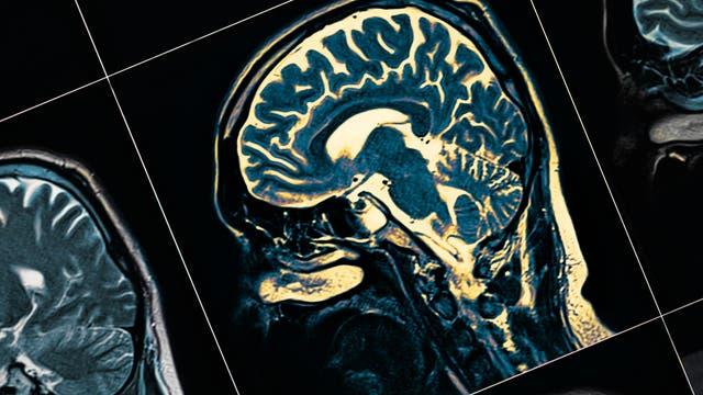 MRT vom Gehirn