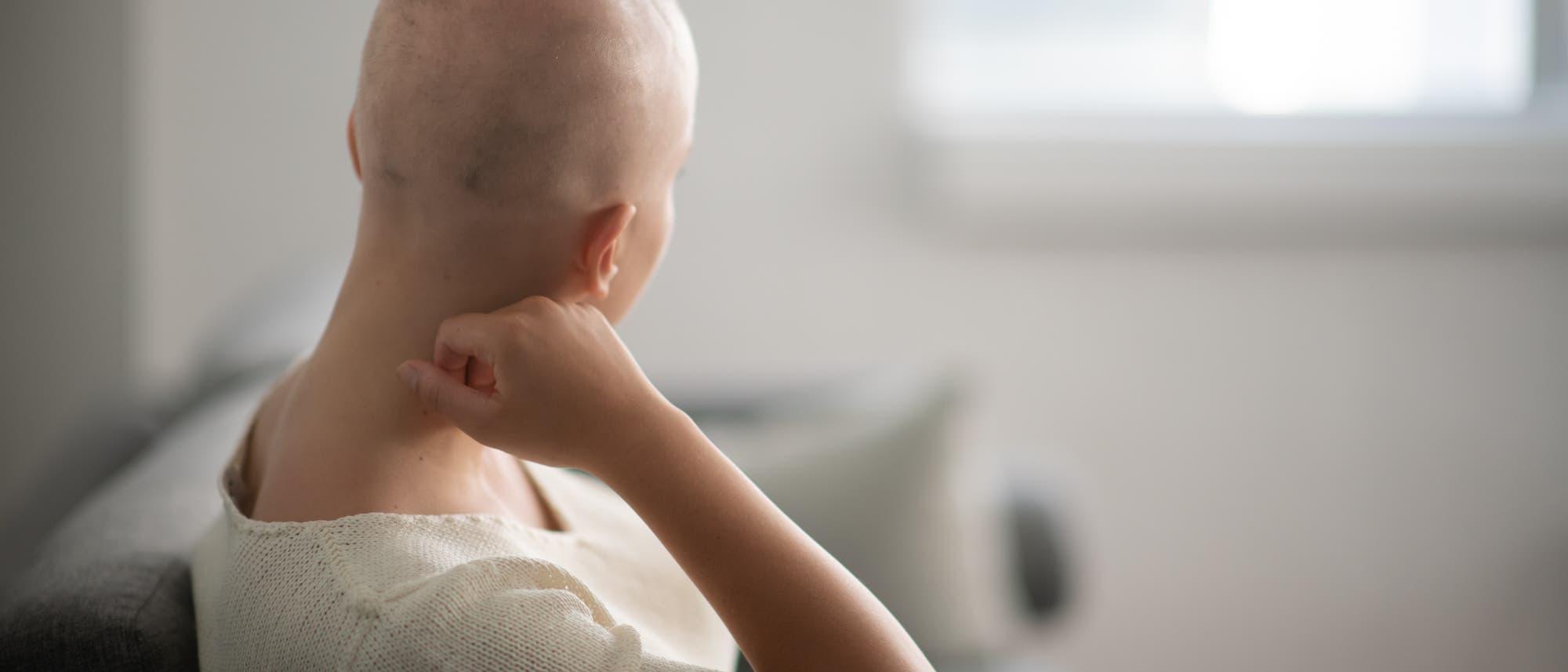 Junge Frau mit kahl rasiertem Kopf