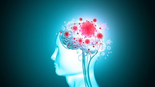 Virus greift Gehirn an