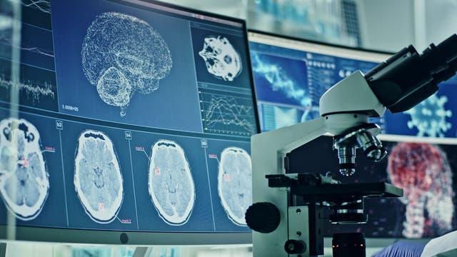 Computerbildschirme mit Hirnscans und ein Mikroskop im Vordergrund.