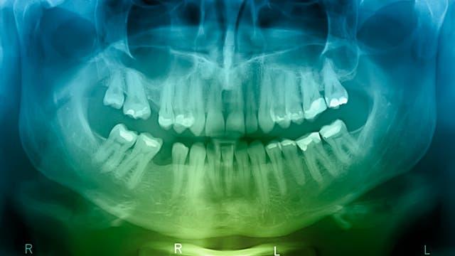 Röntgenaufnahme eines Kiefers