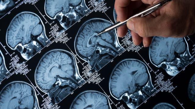 Hirnscans auf einem Monitor