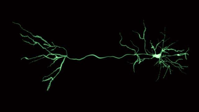 einzelne Nervenzelle, rechts Zellkörper und Dendriten