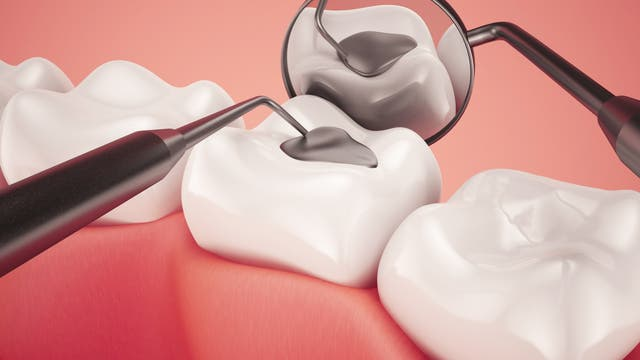 Plombenschau beim Dentisten