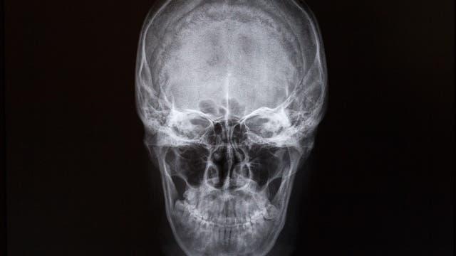 Schädel im Röntgenbild