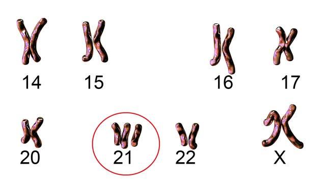Trisomie 21