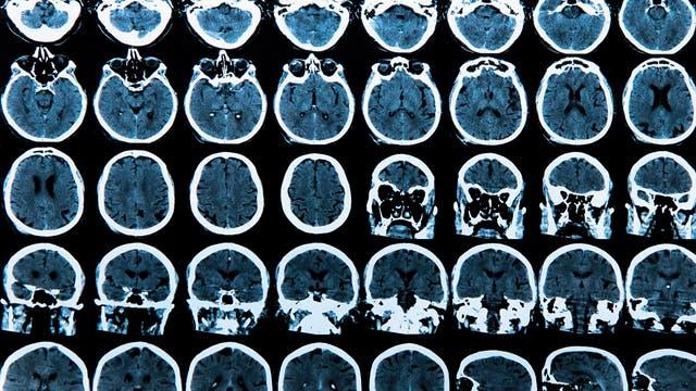MRI Scan des Gehirns