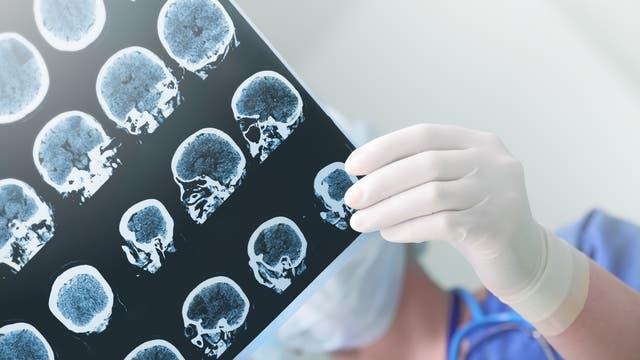 Blick auf einen Hirnscan