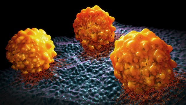 3-D-Illustration von Krebszellen