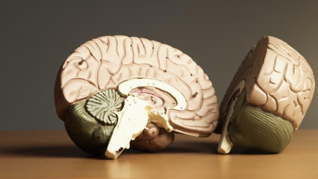 Querschnitt durch ein dreidimensionales Hirnmodell