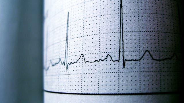Ausdruck eines EKGs
