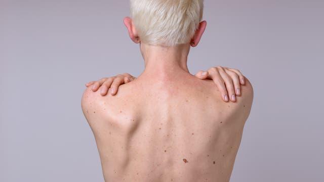 Der Rücken eine Frau ist von zahlreichen Muttermalen bedeckt.