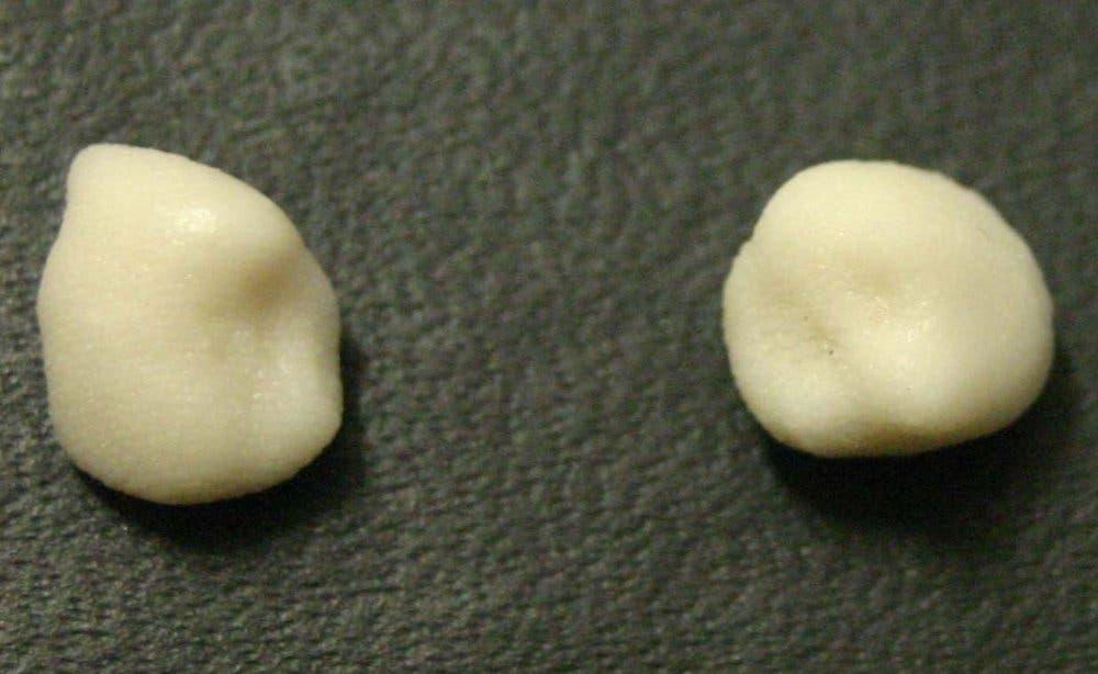 Die Nachbildung der Zähne