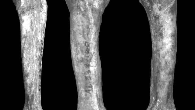 Mittelfußknochen