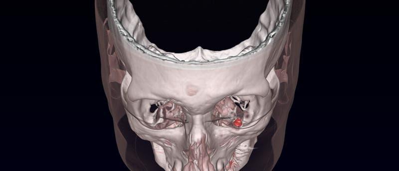 Der Magnet (rot) wurde am unteren Rand des Auges befestigt