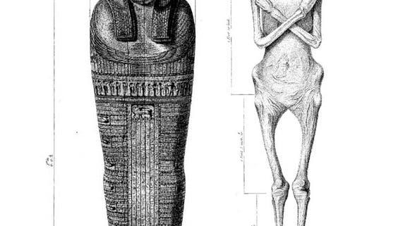 Dr. Granville's Mumie