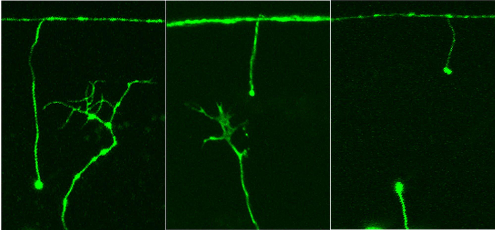 Fadenwurm-Neuronen