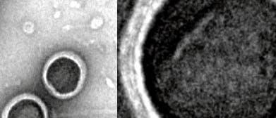 Porphyrsome im Elektronenmikroskop
