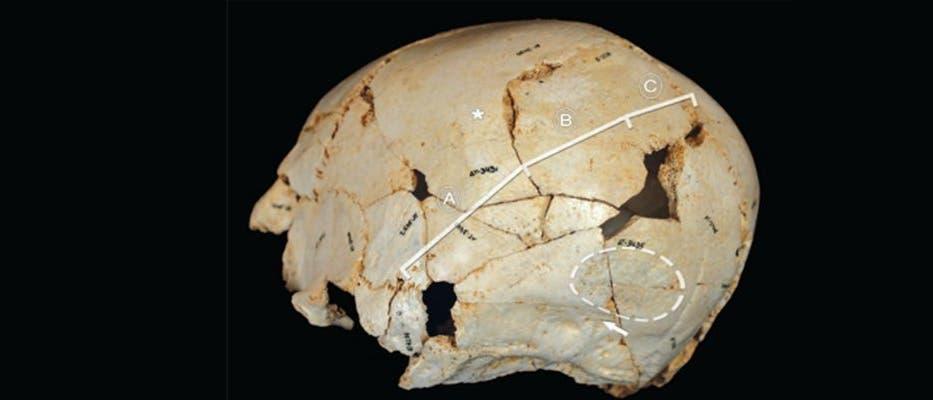 Cranium 14