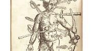 """""""Der verwundete Mann"""": Holzschnitt aus dem """"Feldtbuch der Wundartzney"""" von 1517"""