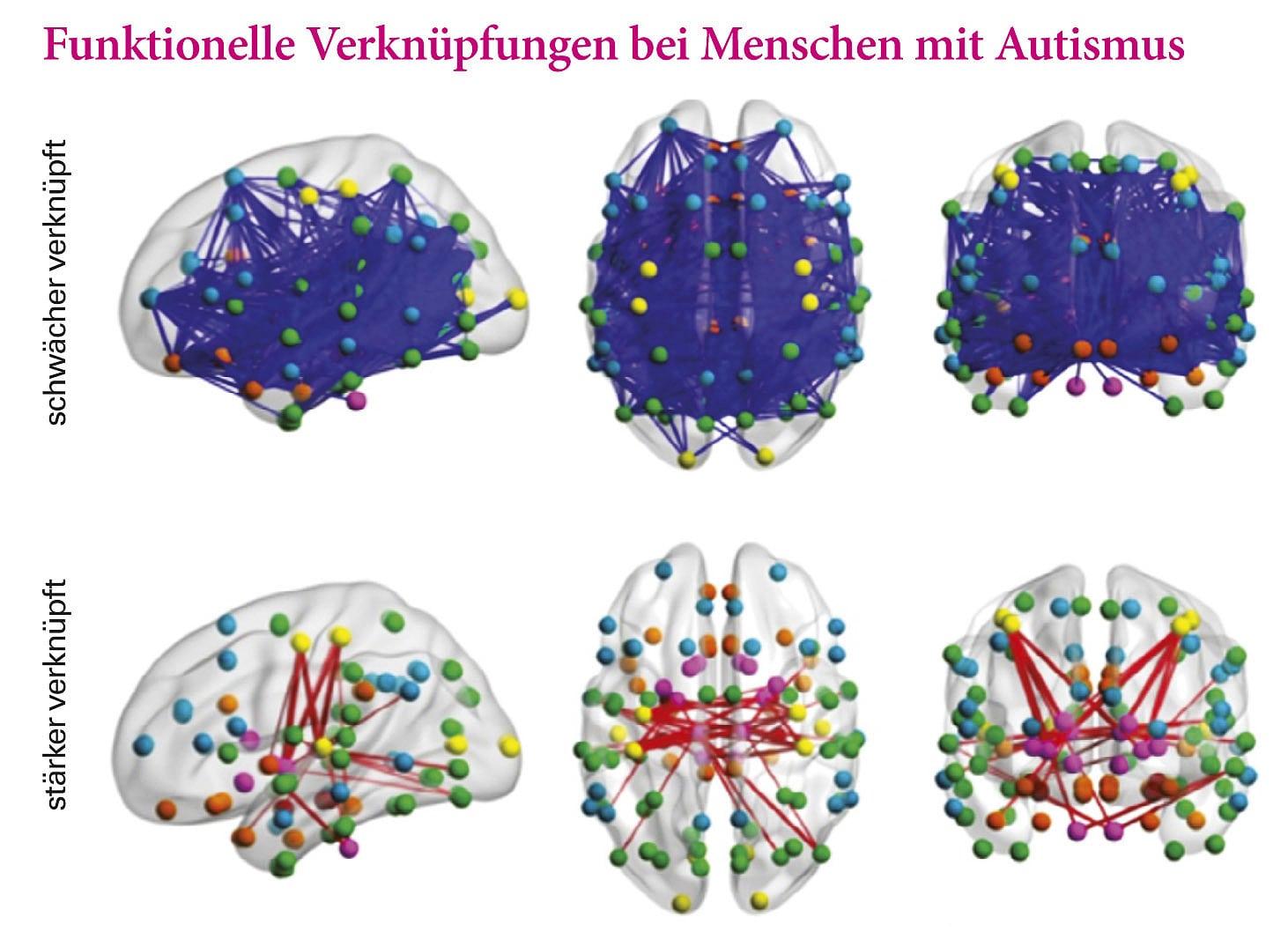 Erwachsene merkmale syndrom asperger Autismus bei