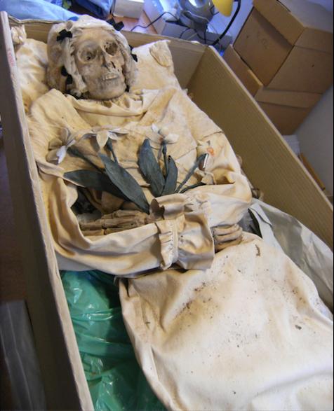 Mumifiziertes Tuberkuloseopfer