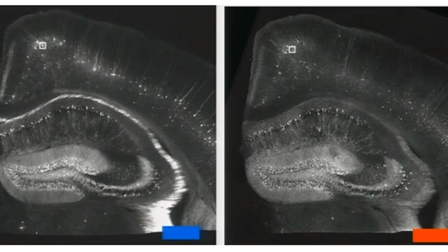 Hippocampus der Maus