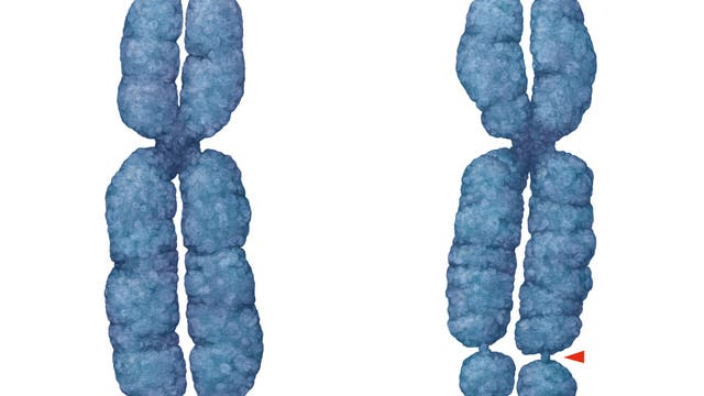 Ein mutiertes X-Chromosom. Es hat ungewöhnliche Einschnürungen im unteren Drittel.