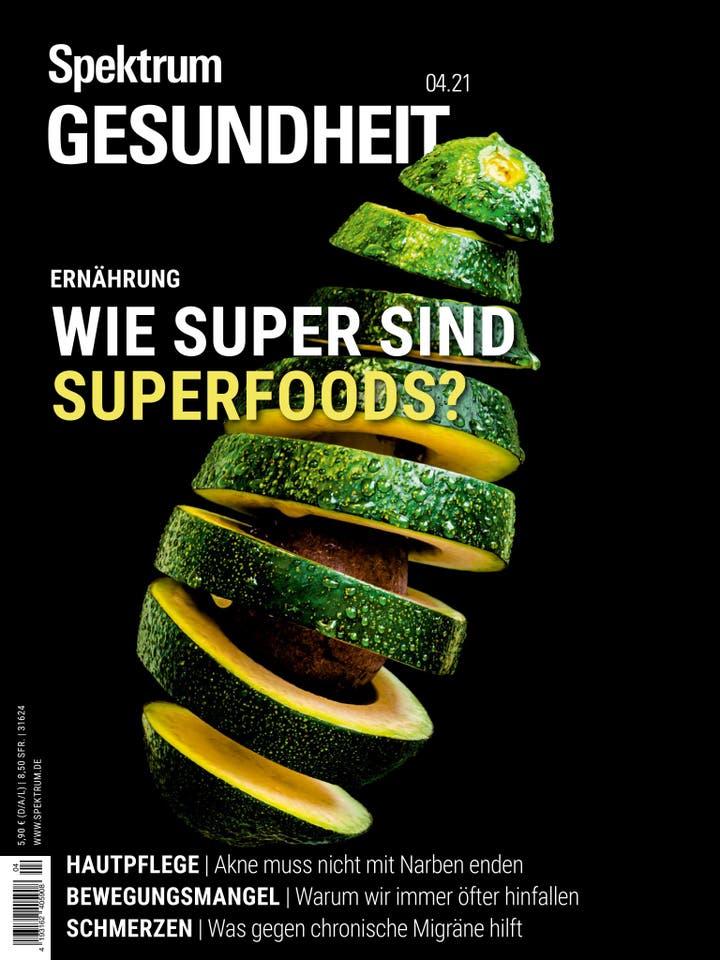 Wie super sind Superfoods?