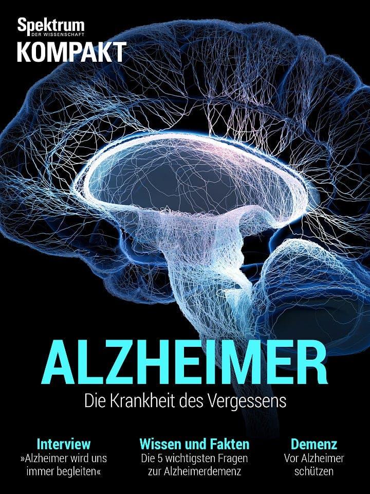Spektrum Kompakt:  Alzheimer – Die Krankheit des Vergessens