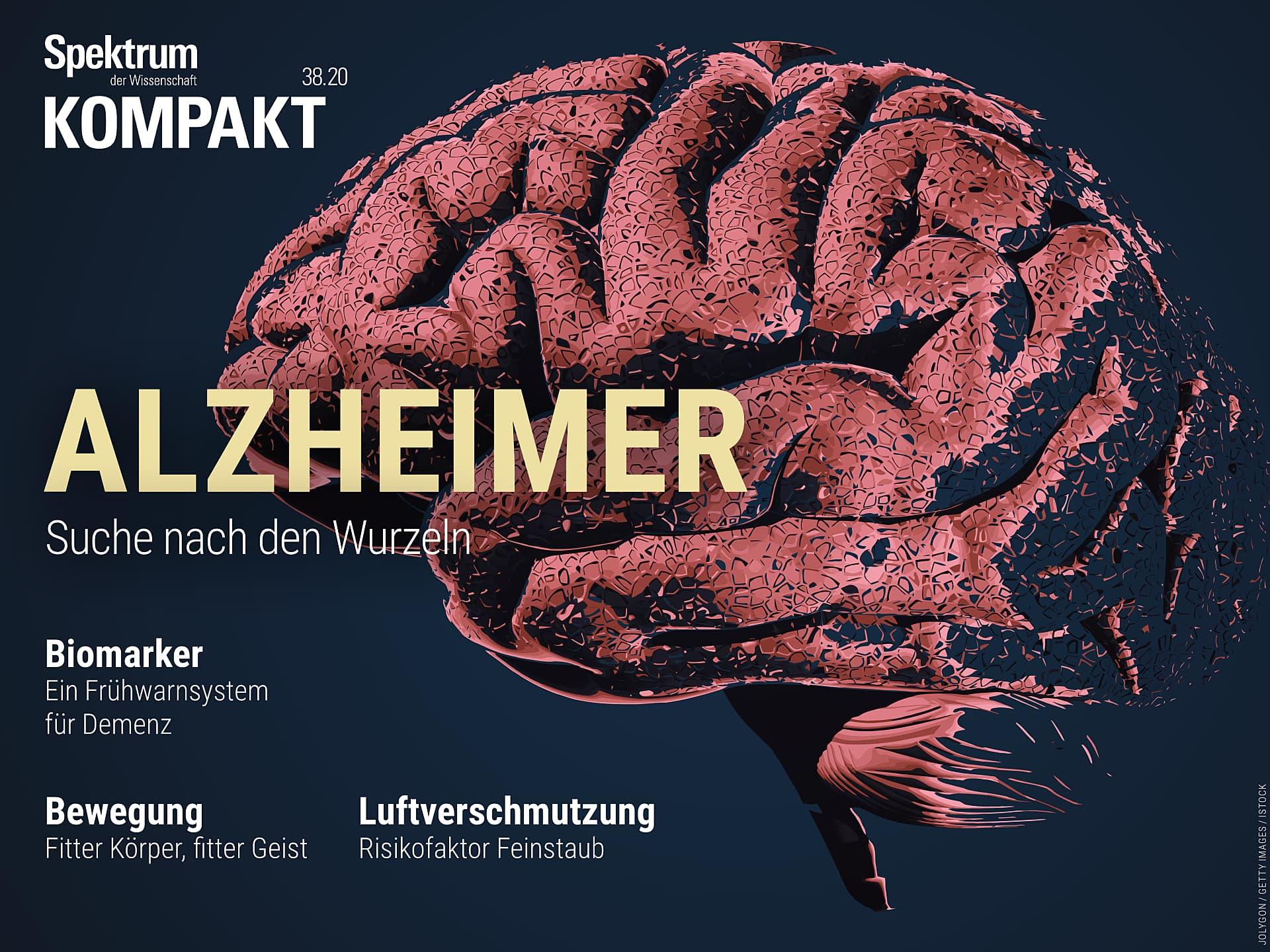 Alzheimer - Suche nach den Wurzeln