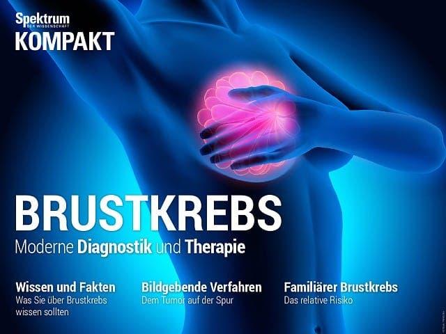 Spektrum Kompakt:  Brustkrebs – Moderne Diagnostik und Therapie