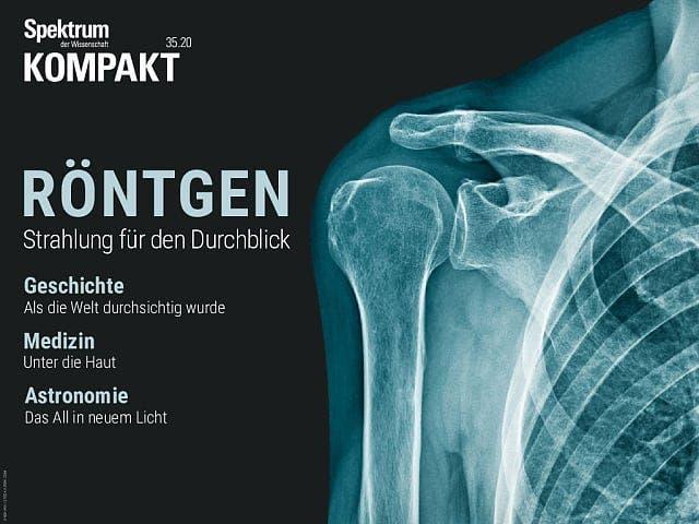 Röntgen - Strahlung für den Durchblick